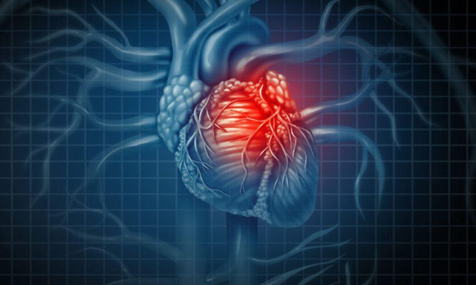 Καρδιοπάθειες