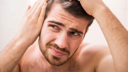 Για ποιο λόγο χάνουμε τα μαλλιά μας