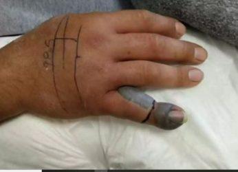 Λάρισα: Τον δάγκωσε φίδι και κινδύνευσε το δάχτυλό του (ΒΙΝΤΕΟ)
