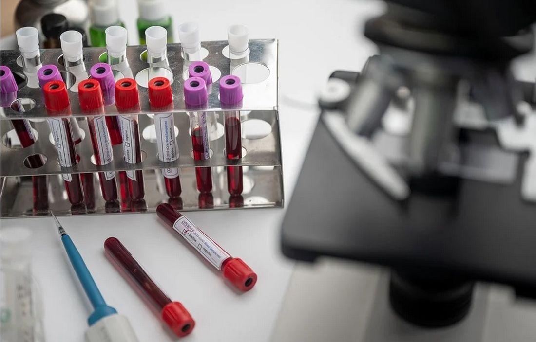 εμβόλια εμβόλιο κορονοϊό κορονοϊού εμβολιασμός κορονοϊός Αυστραλία γρίπη Θεσσαλονίκη ρεμδεσιβίρη