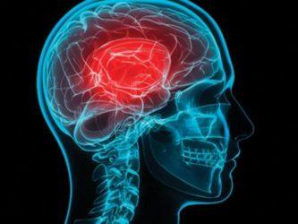 εγκεφαλικό επεισόδιο κάπνισμα
