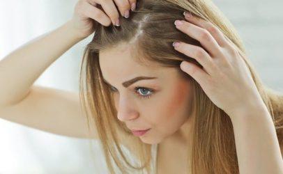 8 τρόποι για να καταπολεμήσετε την ξηροδερμία στο κεφάλι με αγνά υλικά