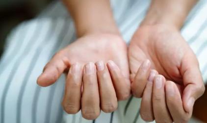 νύχια σημάδια θυροειδή