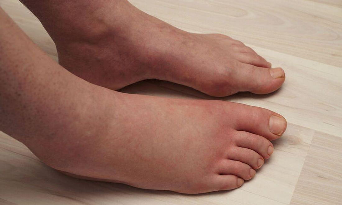 κατακράτηση υγρών πόδια καλοκαίρι